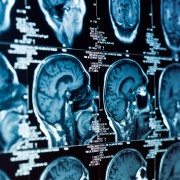 4 tips for maintaining memory and reducing memory loss