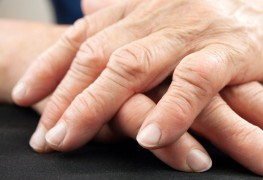 What are the causes and symptoms of rheumatoid arthritis?