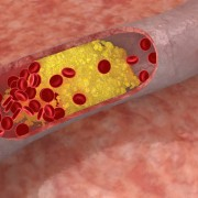 Learn how cholesterol impacts your health