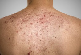 Do you want to know how to get rid of acne scars on the back?