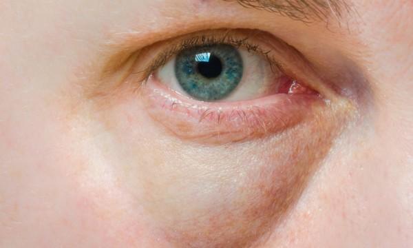 Menggunakan Tisu Basah Untuk Membersihkan Wajah, Efektif atau Bahaya?