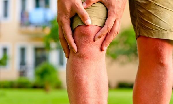 תוצאת תמונה עבור Relieve Symptoms of Arthritis 31 clever uses for coconut oil 31 Clever Uses for Coconut Oil arthritis 1446759724 600x360