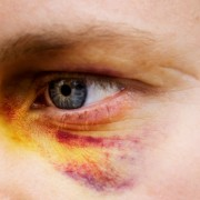 What causes a black eye and how do I recover?