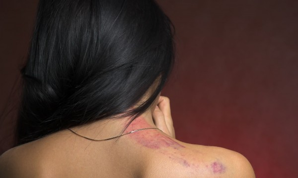 6 herbal remedies for cuts and bruises