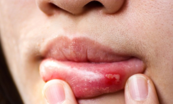 How to get rid of a canker sore