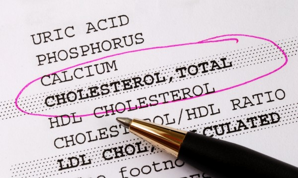Understanding cholesterol and triglycerides