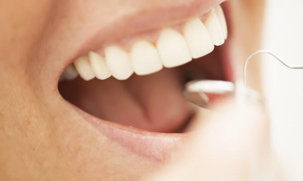 8 homemade dental care remedies