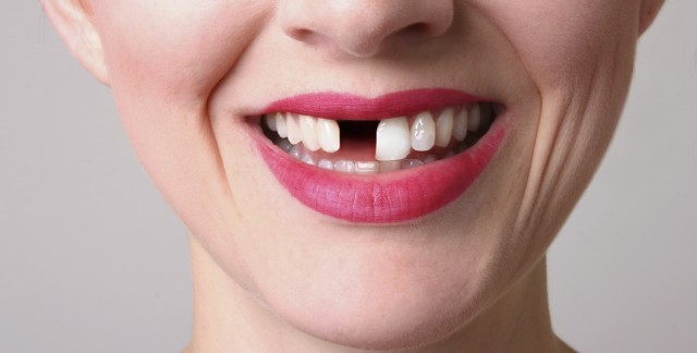 Steps to take if you lose a permanent tooth