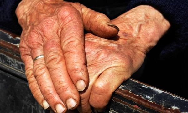 TLC for rough hands