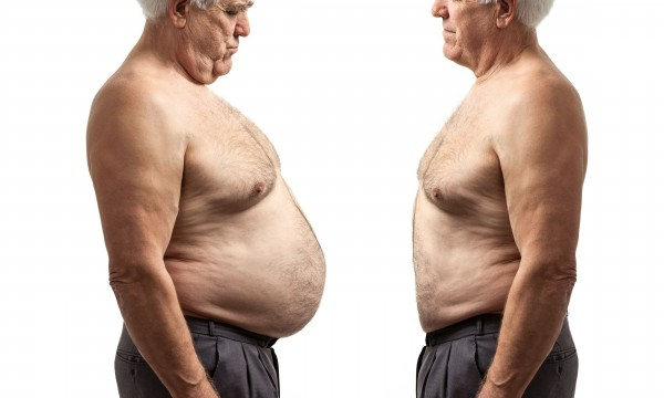 pros and cons of gastric bypass surgery