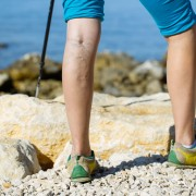 Natural approaches to preventing varicose veins