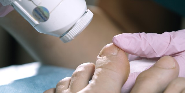 Faites un pied de nez à la mycose des ongles!