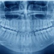 Garder ses dents de sagesse ou les faire extraire?