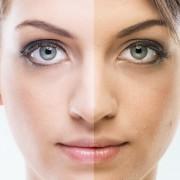La vérité sur les effets du bronzage sur l'acné