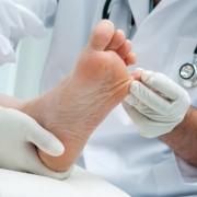 Mycoses et pieds d'athlètes : des plantes qui vous apaiseront