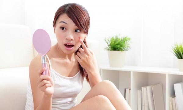 53e32791cb91 7 conseils pour prévenir les boutons sur le visage   Trucs pratiques