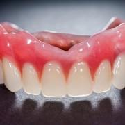 Tout savoir sur le nettoyage de votre dentier