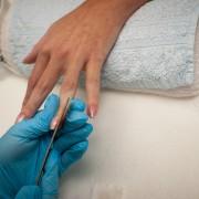 4 secrets pour réduire les pellicules et fortifier les ongles