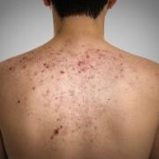 Peut-on enlever les cicatrices d'acné dans le dos?