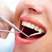 La gingivite: une affection courante et réversible si traitée rapidement