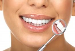 3 raisons pour lesquelles il faut être prudent avec les blanchisseurs de dents