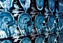 4 conseils pour réduire la perte de mémoire