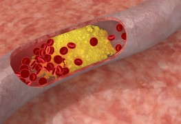 Comprendre le cholestérol et lestriglycérides