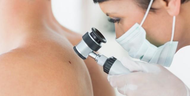3 signes indiquant que vous devriez voir un dermatologue