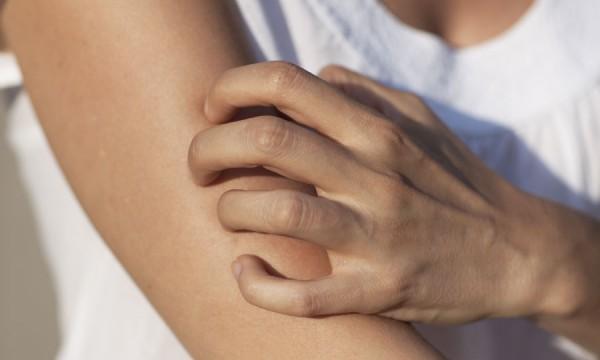 causes de démangeaisons sur tout le corps