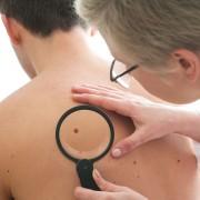 7 stratégies pour repousser le cancer de la peau