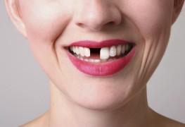 Que faire si vous perdez une dent?