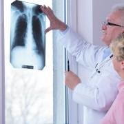 6 moyens simples de garder vos poumons en bonne santé