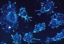 De nouvelles options pour le traitement du cancer de la prostate