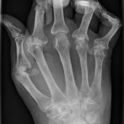 Comment soulager les douleurs de l'arthrite?