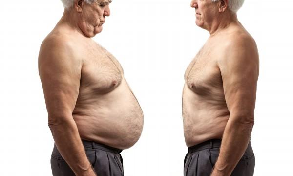 Les avantages et les inconvénients de subirun pontage gastrique